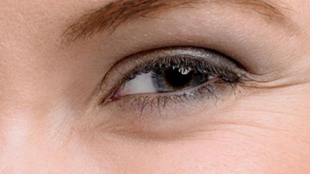 Göz seğirmesi deyip geçmeyin.. O hastalığın belirtisi! 16
