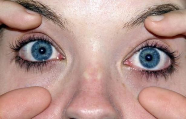 Göz seğirmesi deyip geçmeyin.. O hastalığın belirtisi! 17