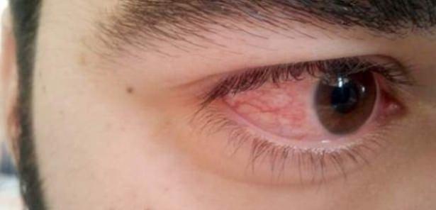 Göz seğirmesi deyip geçmeyin.. O hastalığın belirtisi! 3