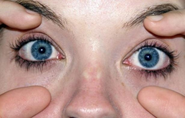Göz seğirmesi deyip geçmeyin.. O hastalığın belirtisi! 7