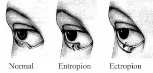 Göz seğirmesi deyip geçmeyin.. O hastalığın belirtisi! 8