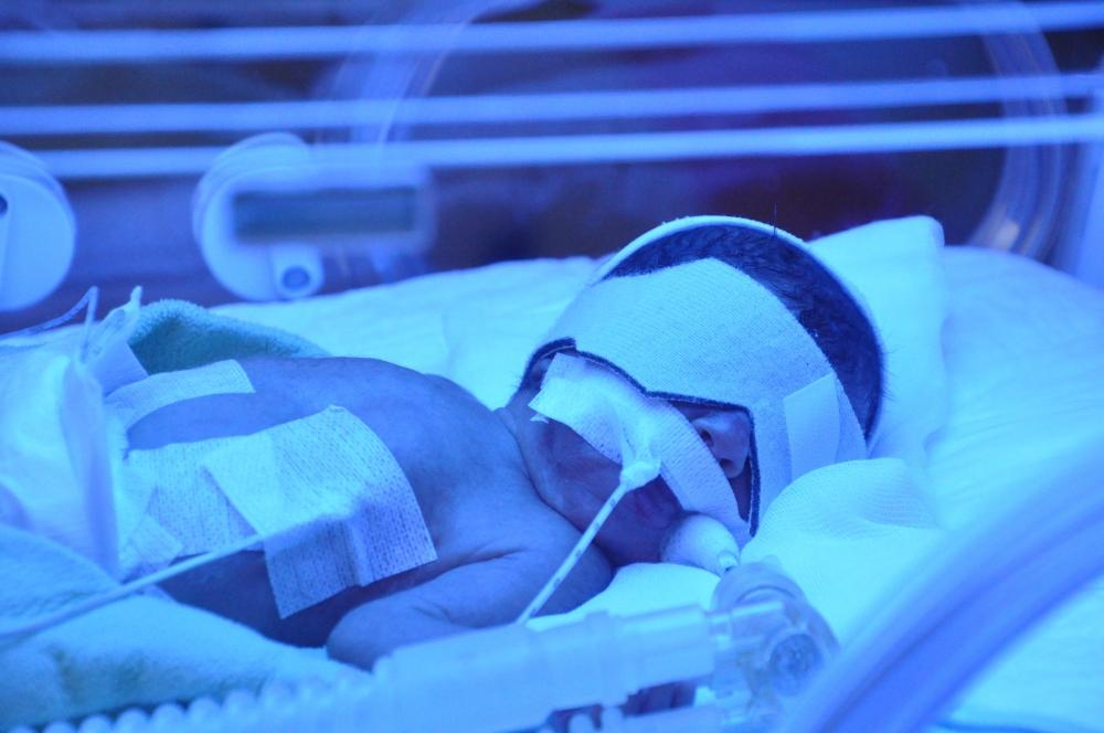 Meram Tıp'ta inanılmaz ameliyat 7