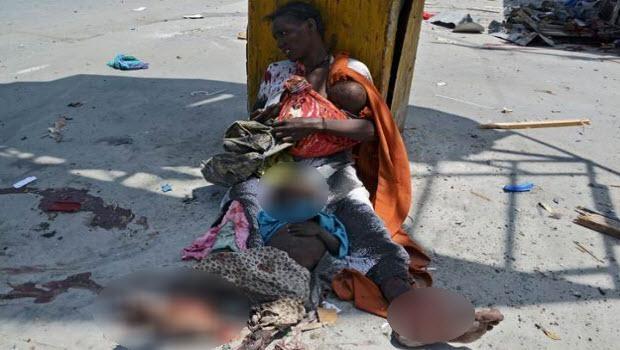 Somali'den dehşete düşüren kareler 6