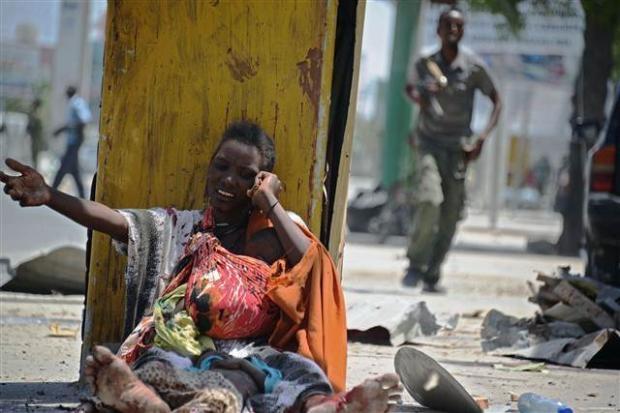 Somali'den dehşete düşüren kareler 7