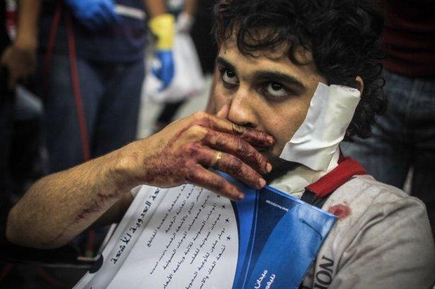 Rabia katliamının acı fotoğrafları 26