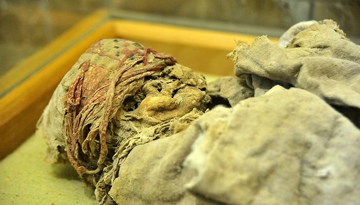 Anadolu'nun mumyaları 26