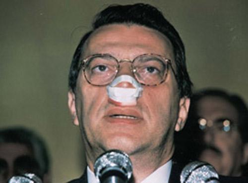 Türk siyasetindeki yumruklu saldırılar 6