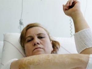 Kocasının kızgın yağla yaktığı kadına Cumhurbaşkanı Erdoğan desteği