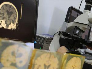 Parkinson ve alzaymır hastalarına umut olacak proje
