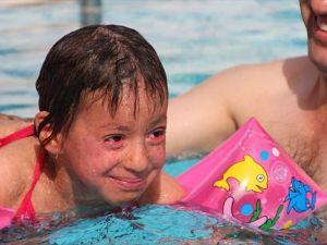 'Balık pulu' hastalığına çareyi termal suda arıyor