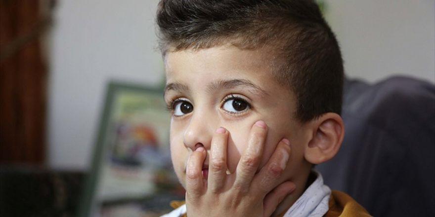 Yahudi Yerleşimcilerin Yaktığı 5 Yaşındaki Devabişe Taburcu Edildi