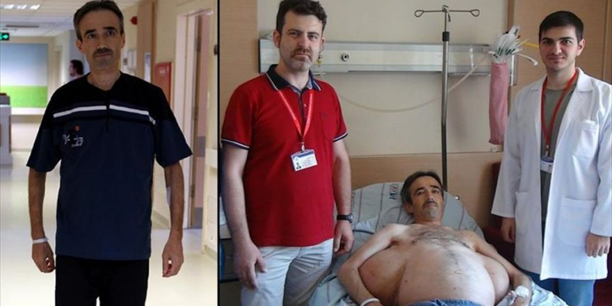 Sırtındaki 25 Kiloluk 'Yük'ten 30 Yıl Sonra Kurtuldu