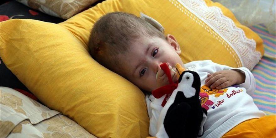 Hidrosefali Hastası Ümmügülsüm Ameliyat İçin Yardım Bekliyor