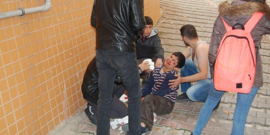 Kırılan sundurmadan aşağıya düşen çocuk yaralandı
