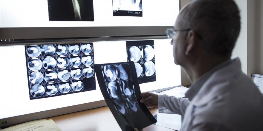 Renkli Ve 3 Boyutlu Röntgen İlk Kez İnsan Üzerinde Denendi
