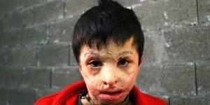 Esad'ın varil bombası 7 yaşındaki Mahmud'u yaktı