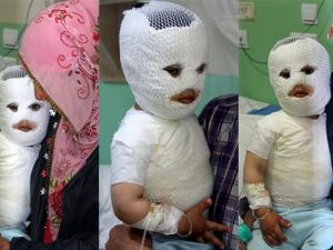 Süt kazanına düşen çocuk feci şekilde yandı