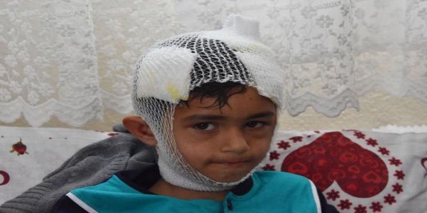 8 yaşındaki Mahmut, sokak köpeklerinin saldırısına uğradı