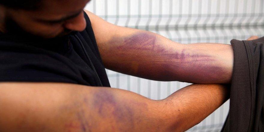 Düzensiz göçmenler konuştu: Yunan askerleri beni tüfekle dövdü